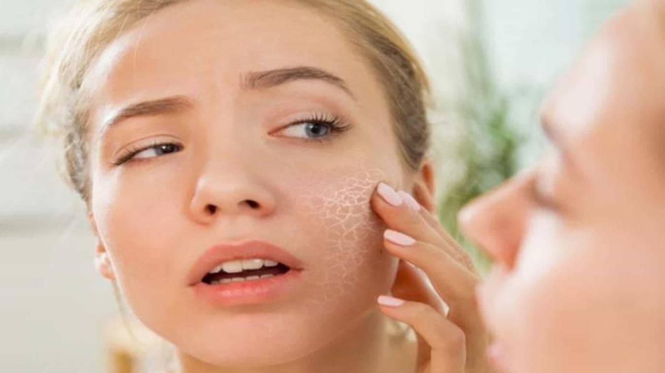 फटे होंठ, सफेद बाल, मस्सों और झुर्रियों से राहत दिला सकते हैं ये 8 घरेलू उपाय